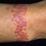 Rash. Close-up of a 39 year old woman's wrist showing a rash at the site of a tattoo. Tattoos are designs made on the skin by introducing permanent dyes into the skin layers. Here, an allergy to a part of the process caused the rash, an area of raised and reddened skin. Tattooing safely requires sterile conditions, as there is a risk of transmitting hepatitis or AIDS (acquired immune deficiency syndrome) through the needles used. Rashes can be treated with soothing skin creams such as calamine lotion, or antihistamine drugs to reduce the inflammation and itching.