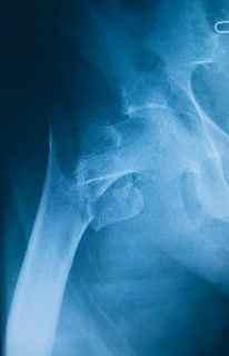 X-ray of broken hip